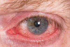ojo_rojo